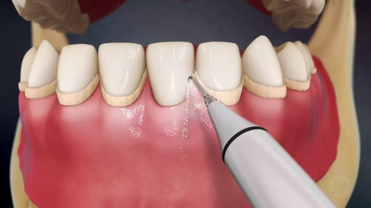 7-ultrazvukovaja-chistka-zubov.jpg