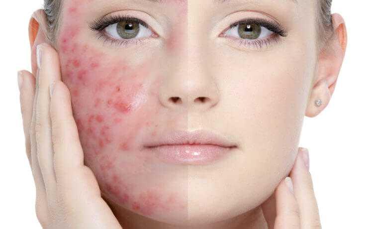 acne-ekomed.jpg