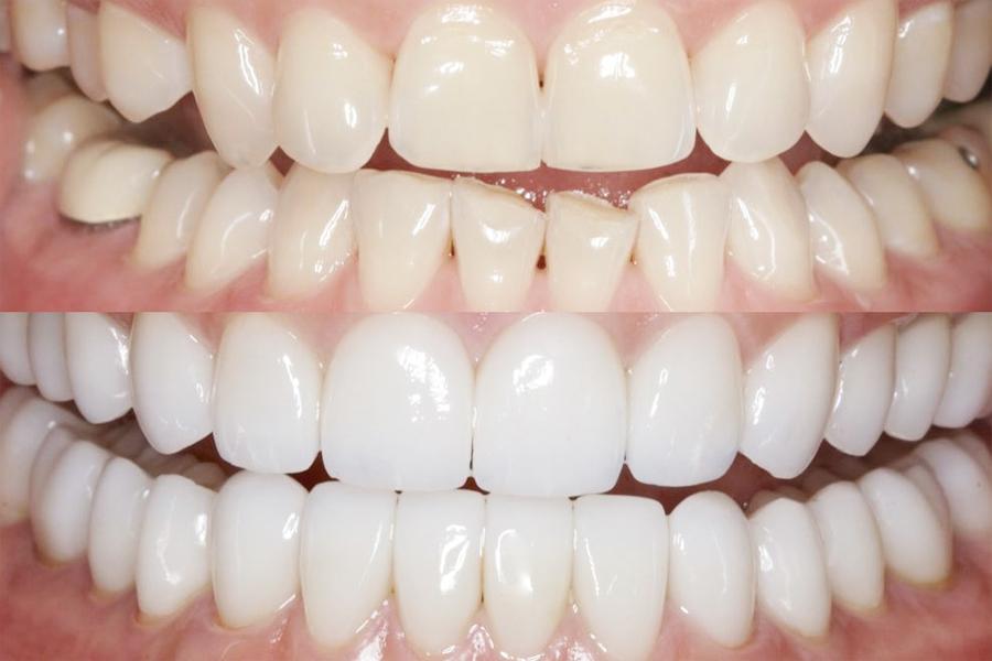 restavraciya-zubov-medicor-4.jpg