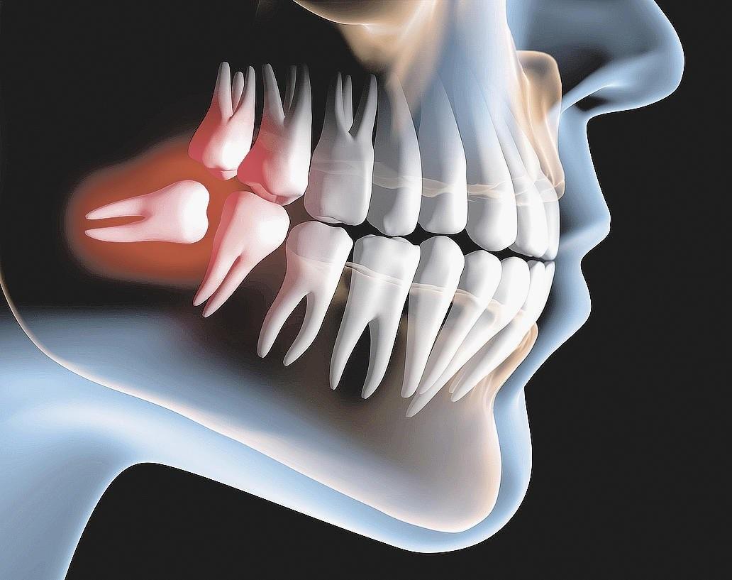 зубы м.jpg